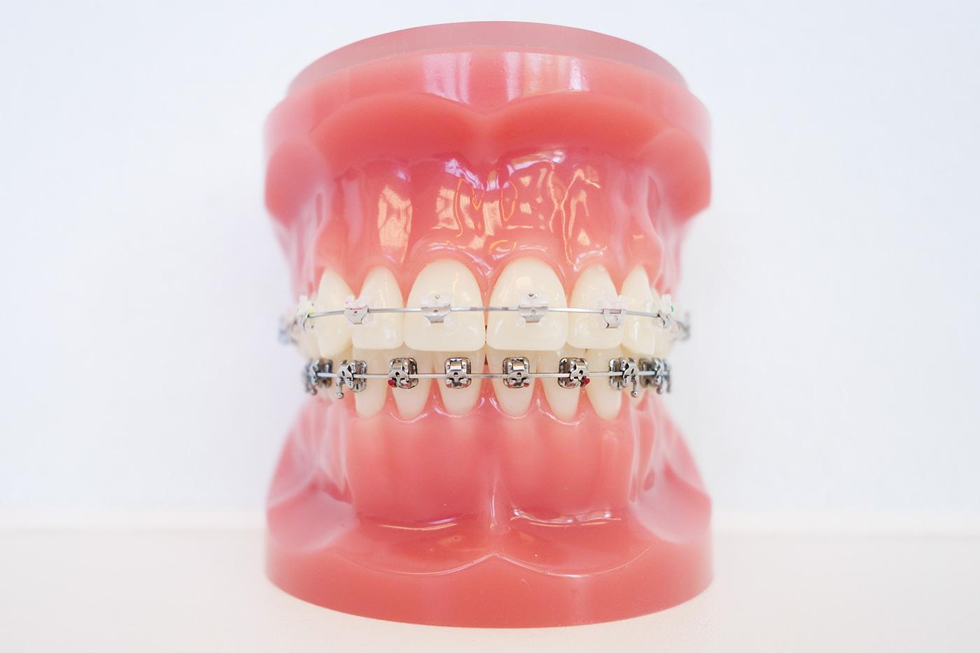 behandlungsdetails-jugendliche-zahnfarbene-keramikbrackets